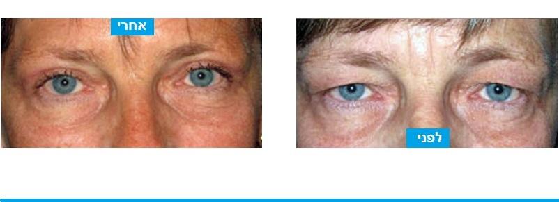 ניתוח עפעפיים עליונים שבמהלכן בוצע הסרת עודפי עור בלבד, לא צורך בחיזוק שרירי העפעף או הסרת שומן. מתיחת עור העפעפיים בלבד השיגה הצערה ניכרת במראה בעיניים והפנים בכללותם.