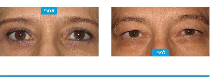 ניתוח עפעפיים עליונים ותחתונים. בני%QAוח בוצעה הסרה של עודפי עור ושומן בעפעפיים העליונים שהסתירו את העין. ובעפעפיים התחתונים בוצעה מתיחה של העור והסרת מעט עודפי שומן. התוצאה היא מראה טיבעי, לא מנותח, וצעיר הרבה יותר