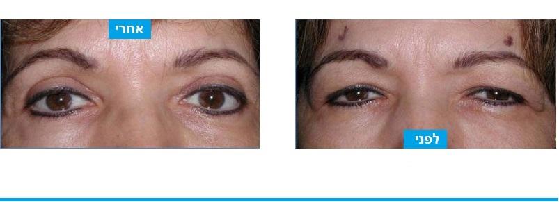 מטופלת שסבלה מצניחת עפעפיים (פטוזיס) עם הסתרה של העין וגם מעודפי עור שהסתירו את האיפור . בניתוח עפעפיים עליונים בוצע חיזוק שרירי העפעפיים והוסרה של עודפים של עור ושומן. הניתוח פתר גם את בעיית הראי וגם את הבעיה הקוסמטית