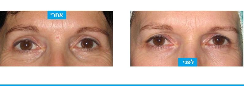 ניתוח עפעפיים במטופלת צעירה שבוצעה %Q2 ידי הסרה של מעט עודפי עור בלבד בעפעף העליון. הושג מראה של עין פתוחה יותר ומראה כללי מואר הרבה יותר.