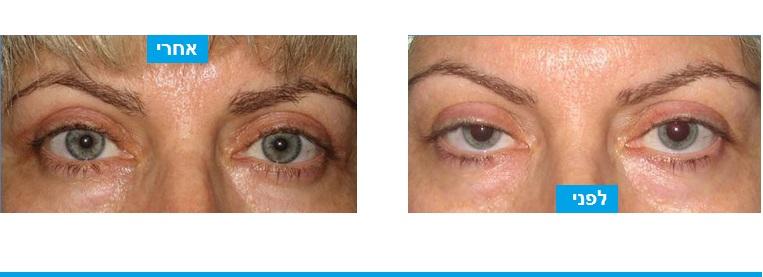 מטופלת שסבלה ממראה עייף והפרעה בשדה הראיה על רקע צניחת עפעפיים. בניתוח בוצע חיזוק של שרירי העפעפיים והעיניים נפתחו. המראה התחלף ממראה עייף למראה רענן יותר וצעיר יותר.