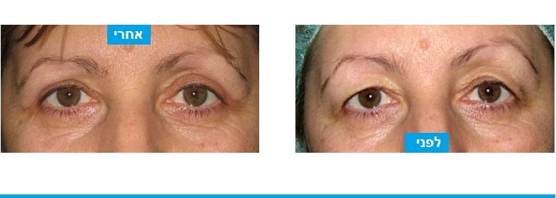 הסרה של כמות מועטה של עור בעפעפיים העליונים מקנה מראה צעיר יותר וטבעי מאד.