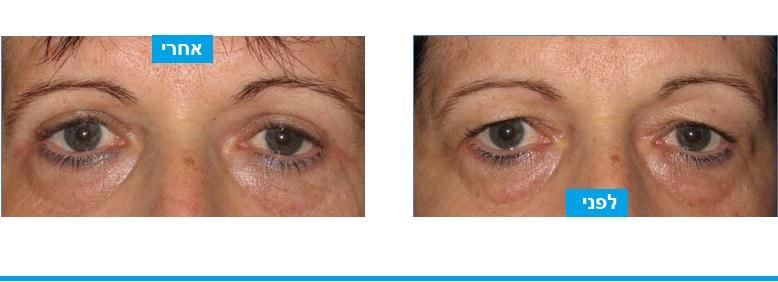 ניתוח עפעפיים שבא לפתור תחושת כובד בעפעפיים על רקע לחץ של עודפי העור על הריסים בחלק הצדדי של העין, ומראה עייף . הניתוח פתר גם את הבעיה הפונקציונלית וגם את ההפרעה הקוסמטית