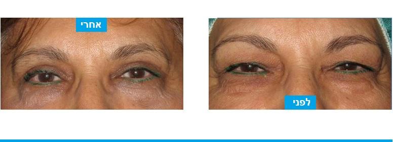 ניתוח עפעפיים מהלכו בוצעה חיזק שרירי העפעפיים העליונים והסרת עודפי עור בעפעף העליון