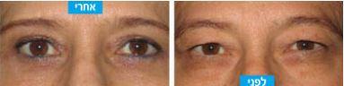 לפני ואחרי ניתוח עפעפיים עליונים
