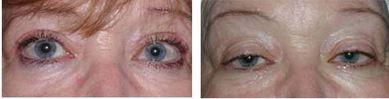 לפני ואחרי ניתוח חיזוק שרירי העפעפיים והסרת עודפי עור