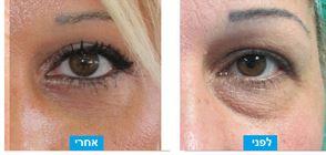 לפני ואחרי הסרת עודפי עור ושומן מהעפעף התחתון