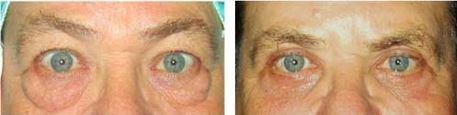 לפני ואחרי ניתוח להסרת שקיות שומן בולטות