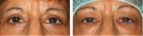 לפני ואחרי ניתוח לטיפול בשקיות מתחת לעיניים בעפעף התחתון