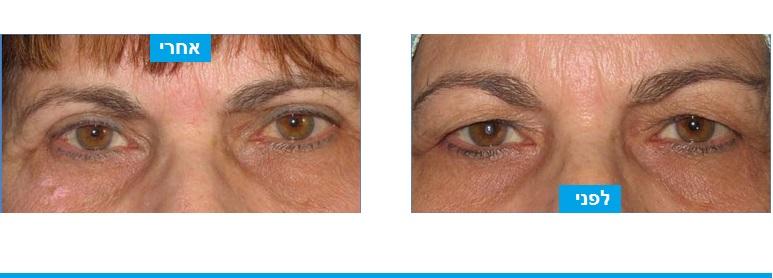 תמונות לפני ואחרי ניתוח עפעפיים במטופלת שלא יכלה להתאפר סבלה מתחושת כובד ועייפות