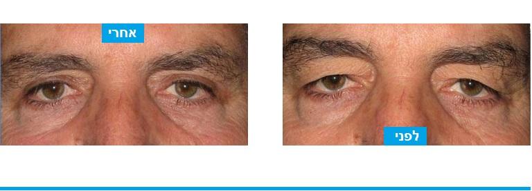 גבר שסבל מתחושת כובד ועייפות ועבר ניתוח עפעפיים במהלכו בוצעה הסרה של עודפי העור שלחצו על העין