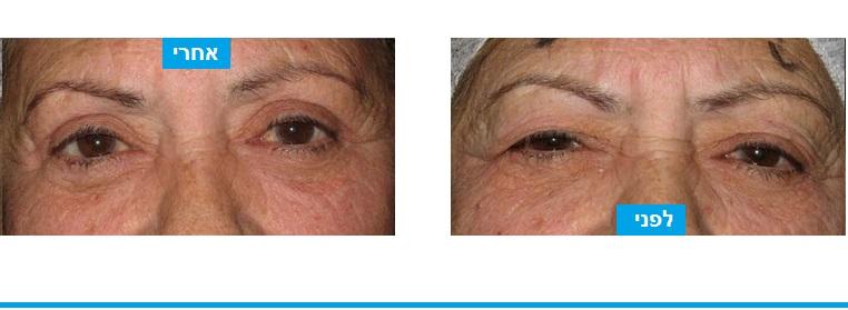 מראה עיניים עייפות ומבוגרות על רקע צניחת עפעפיים השתפר לאחר ניתוח לחיזוק שרירי העפעפיים