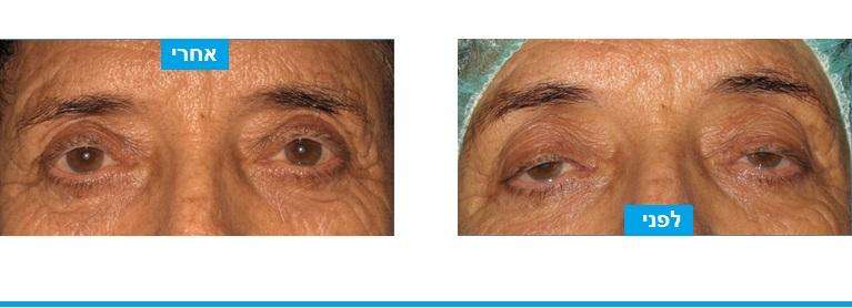 שיפור דרמטי במראה ובהרגשה בעקבות ניתוח עפעפיים לתיקון פטוזיס במהלכו בוצע חזוק של שרירי העפעפיים ללא צלקת חיצונית נראית לעין