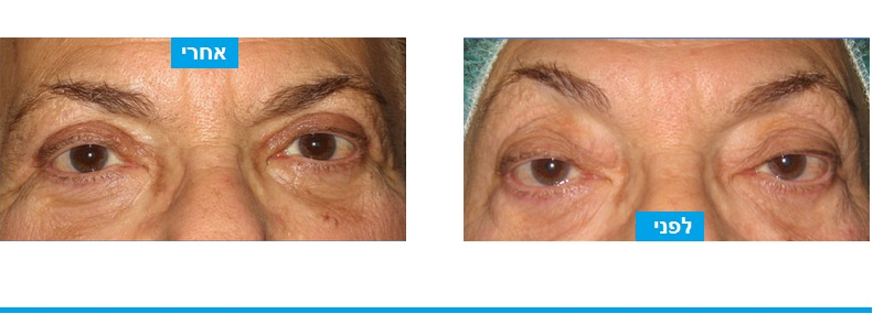 צניחת עפעפיים ושקיות שומן בולטות מעל העין תוקנו בניתוח עפעפיים במהלכו בוצעה הסרה של שקיות שומן וקיצור שרירי העפעפיים