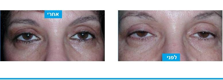פתיחת העיניים על ידי ניתוח לחיזוק שרירי העפעפיים ללא צלקת חיצונית