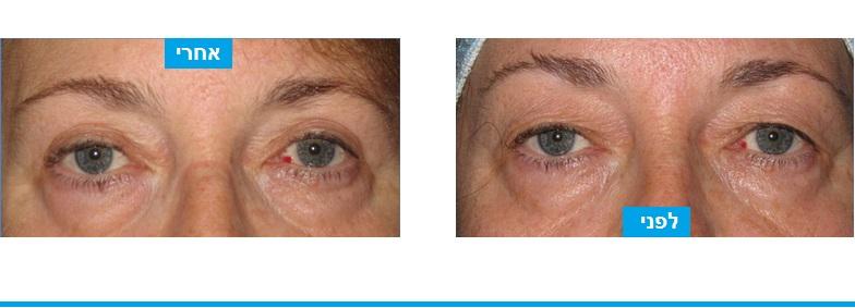 מראה טיבעי ומשופר לאחר ניתוח עפעפיים במהלכו בוצעה הוסרה של עודפי עור בעפעפיים עליונים