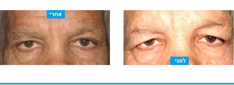 ניתוח עפעפיים לתיקון בעיה של עודפי עור בעפעף העליון המסתירים את העין