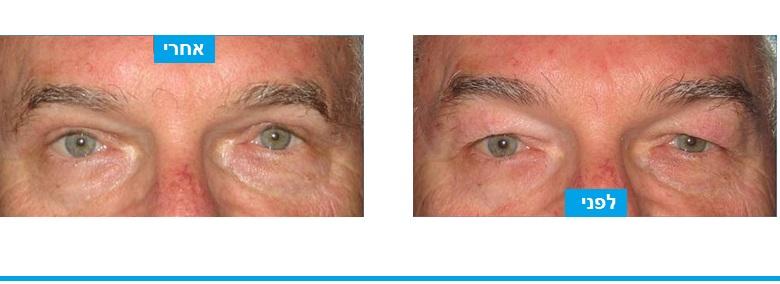 עודפי עור שמסתירים את בעין הוסרו בניתוח עפעפיים עליונים עם חתך;המוסווה היטב בקפל העפעף