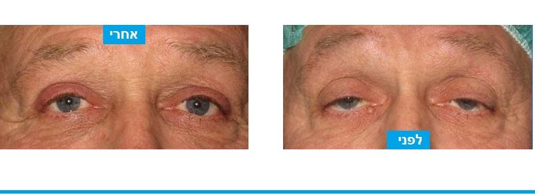 חיזוק שרירי העפעפיים בניתוח עפעפיים לא צלקת נראית לעין