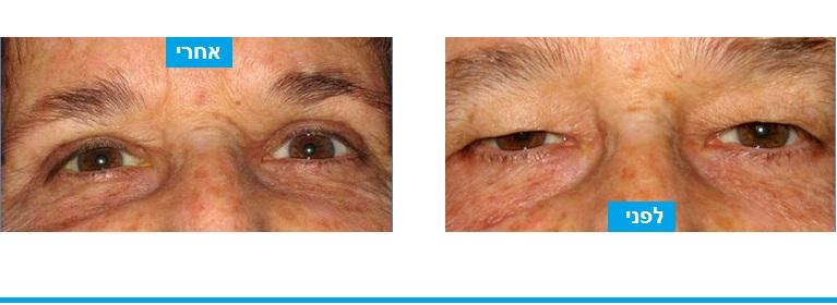הסרת עודפי עור בעפעף העליון בניתוח עפעפיים עם צלקת בלתי נראית המסוות היטב