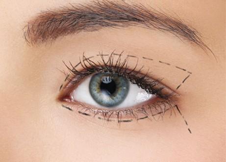 ניתוח עפעפיים תחתונים (שקיות מתחת לעיניים)