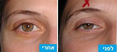 לפני ואחרי ניתוח הרמת עפעפיים