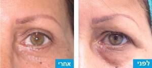 לפני ואחרי ניתוח מתיחת עפעפיים עליונים