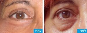 לפני ואחרי הסרת עודפי שומן ועור מהעפעפיים