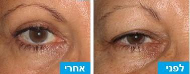 לפני ואחרי ניתוח עפעפיים לחיזור השריר והסרת עודפי עור ושומן