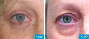 לפני ואחרי הסרת עודפי עור ומתיחת עור