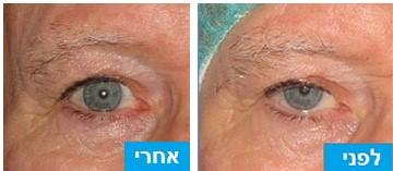 לפני ואחרי חיזוק שריר העפעף העליון