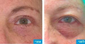 ניתוח הרמת עפעפיים - לפני ואחרי