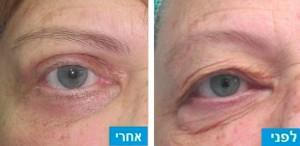 לפני ואחרי ניתוח מתיחת עפעפיים עליונים ותחתונים